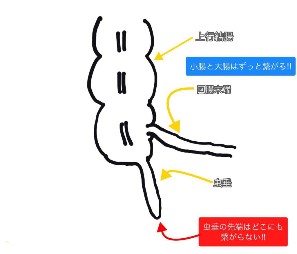 回腸末端と虫垂、回盲部の関係